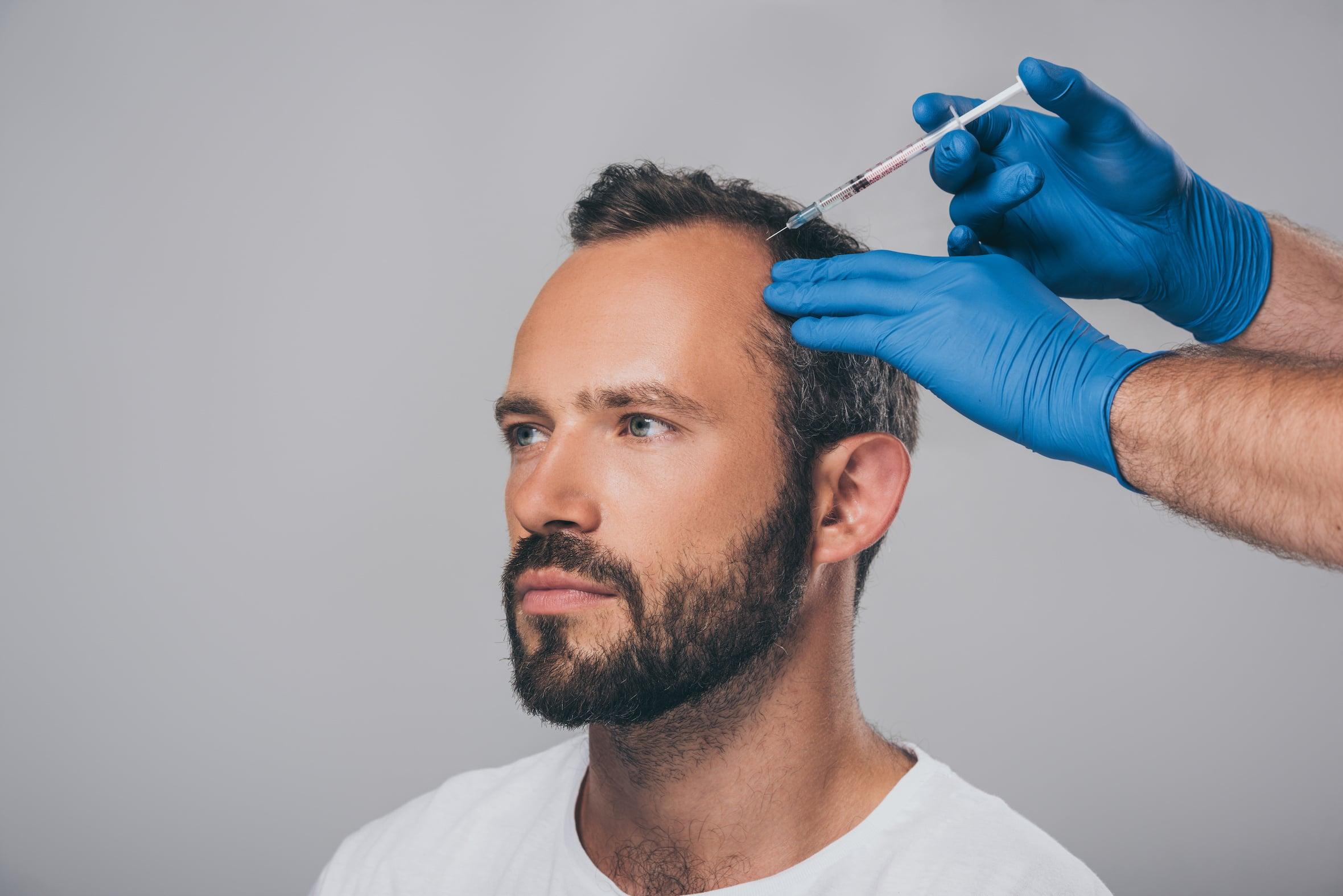 Clinic Renaissance - Lille - Médecine esthétique - Cheveux - chute des cheveux - Calvitie - PRP