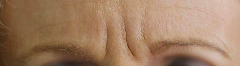 injections toxine botulique - médecine esthétique Lille - ride du lion - ride de patte d'oie - ride de la glabelle - ride d'amertume