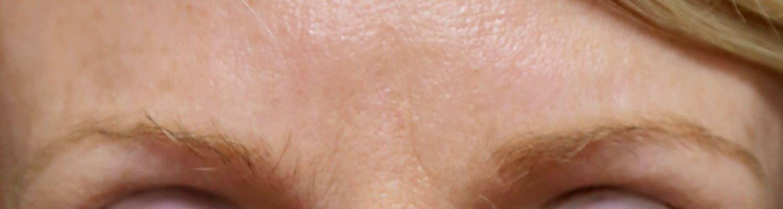botox Lille - rides front - médecine esthétique - injections lille - visage plus jeune - clinic renaissance
