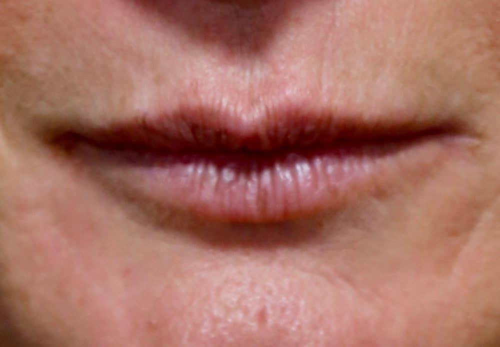 Lèvres abimées par le tabac