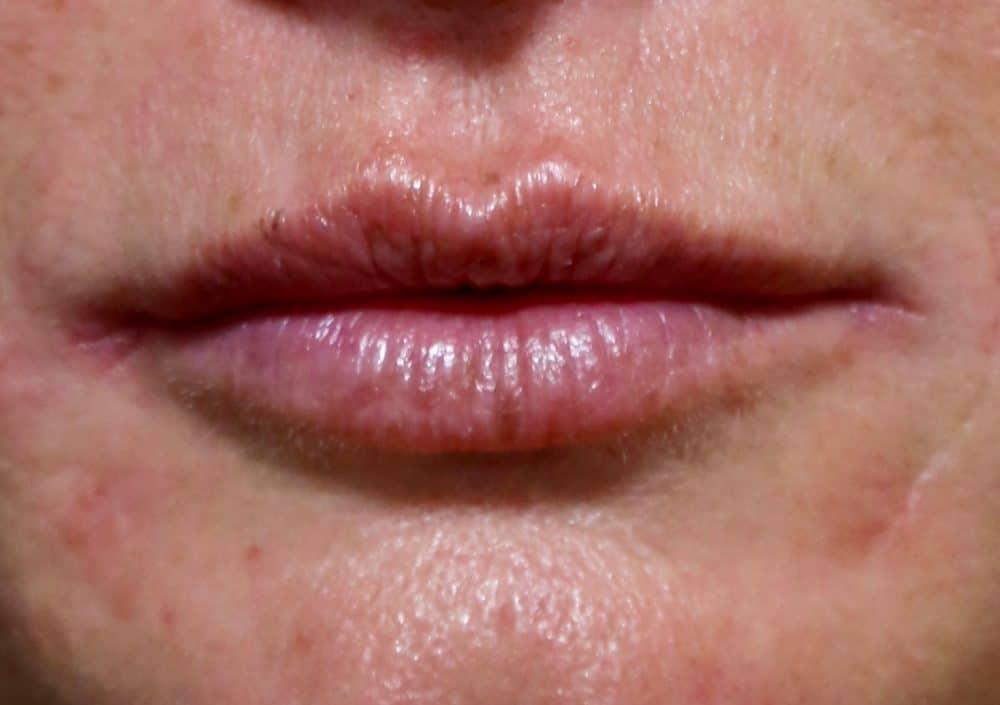 Injection Acide Hyaluronique dans les lèvres - Acide hyaluronique Lille -